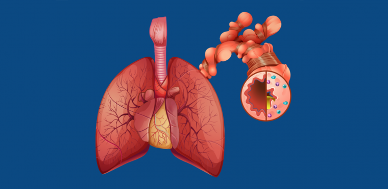 Severe asthma and when to refer